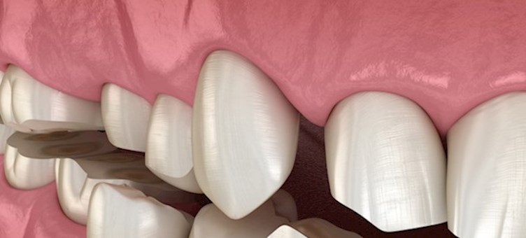 Modern approaches to tooth surface loss